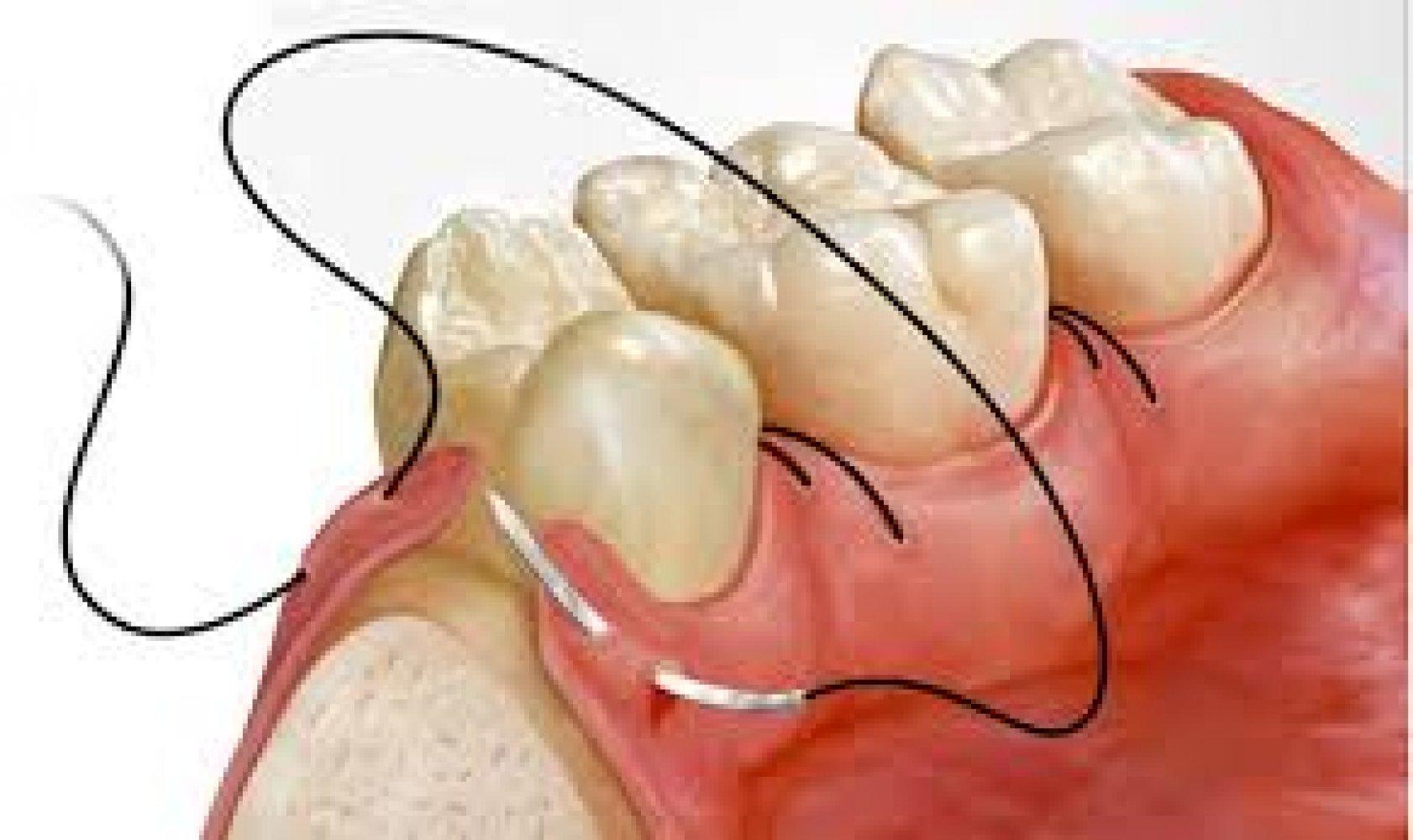 Чем обрабатывают десну после удаления зуба
