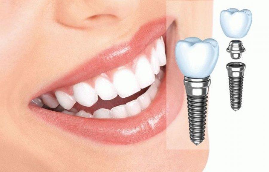 Якісна і надійна імплантологія в стоматології