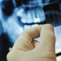 Рентгенодіагностика
